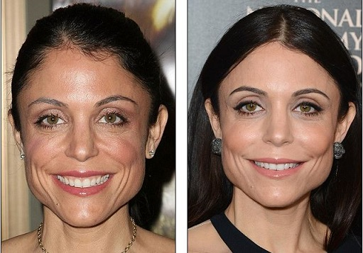 Dr Terry Dubrow Gives His Opinion On Bethenny Frankel S